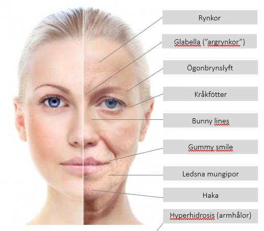 En bild som beskriver behandlingar som Homespa utför gällande botox